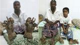 """孟加拉一家人均患怪病成首个""""树人""""家庭"""