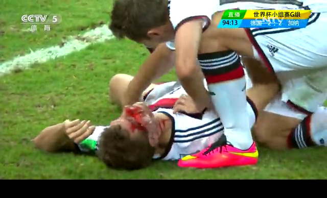 【受伤】托马斯穆勒终场前撞伤眉骨 血染绿茵场截图