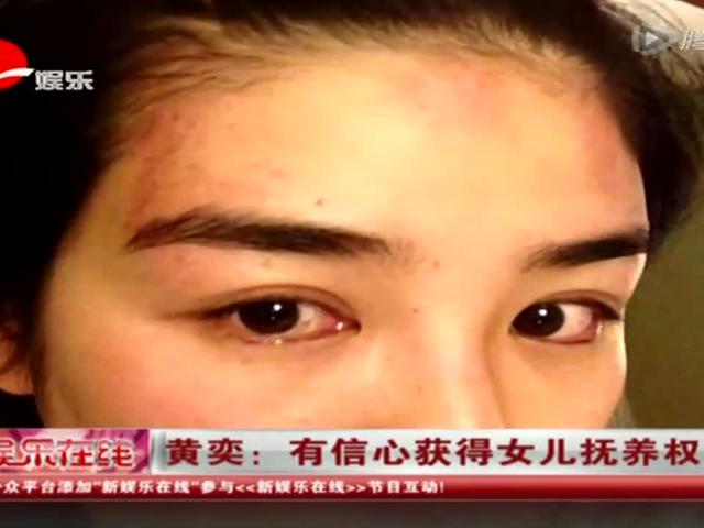 黄奕晒家暴受伤图 誓要争夺女儿抚养权截图