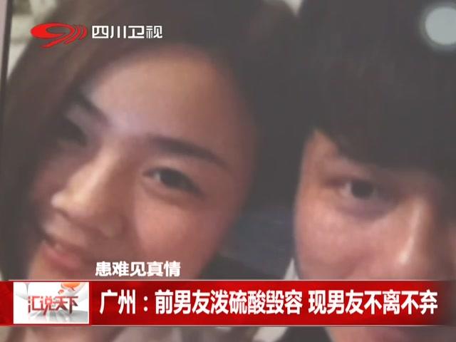 广州:前男友泼硫酸毁容 现男友不离不弃