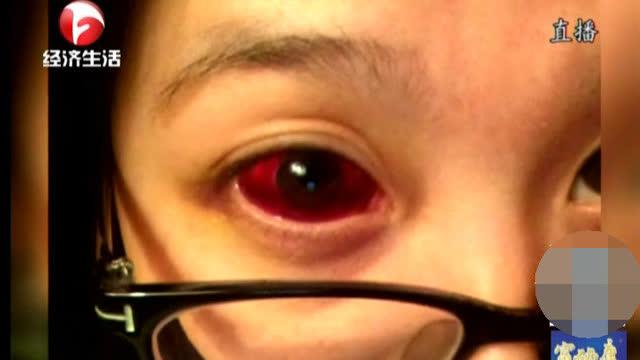 眼球的结构——全方位带您了解近视 - 腾讯视频