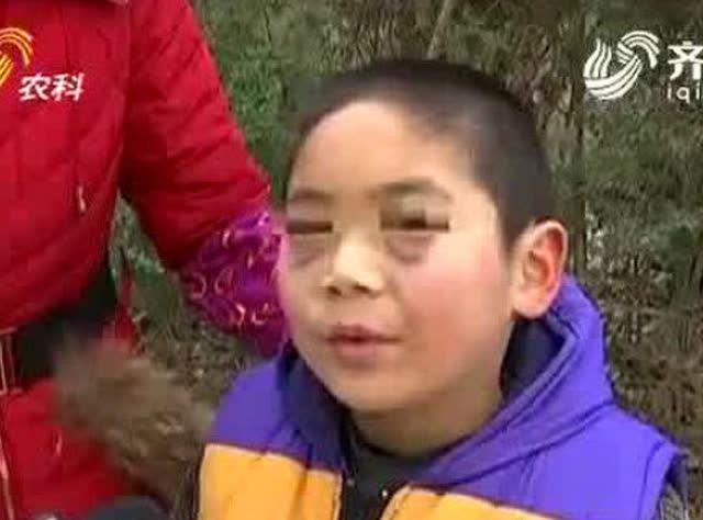 """9岁男孩被老师打成""""熊猫眼"""""""
