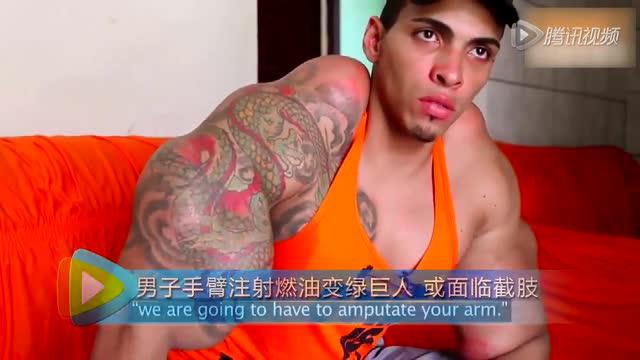 实拍男子手臂注射燃油变绿巨人 或面临截肢截图