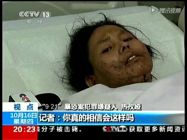 新疆武警战士负重伤击毙暴徒 脸被划12厘米伤口_新闻_百辉网