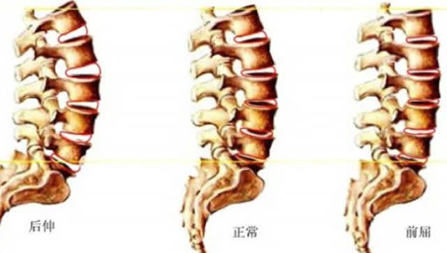 腰椎12345节的位置图-腰锥压迫神经引起脚木用什么方法治疗好 快速