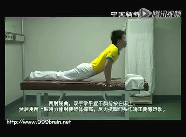 脊柱侧弯矫正操 - 腾讯视频