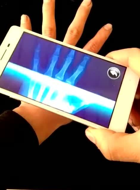 手机观看人体_老铁们这是什么手机,竟然可以透视人体骨骼