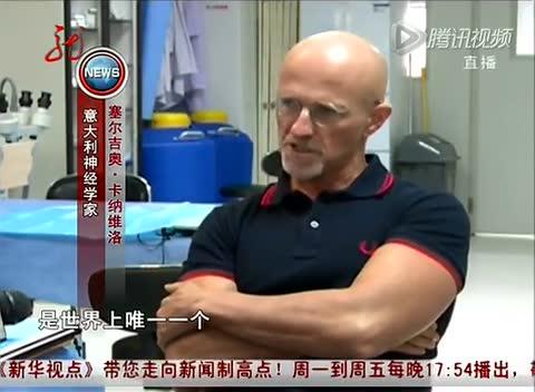 换头!中意团队将挑战世界首例人类头部移植术截图