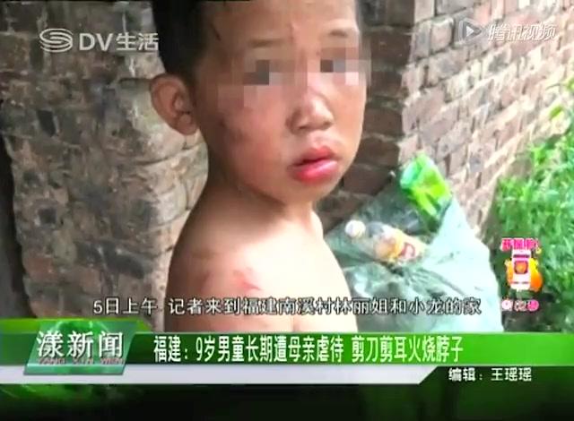 福建9岁男童长期遭母亲虐待 剪刀剪耳火烧脖子截图